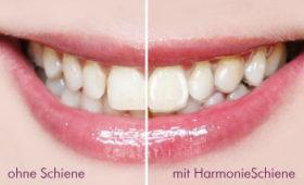 Gerade Zähne lachen schöner